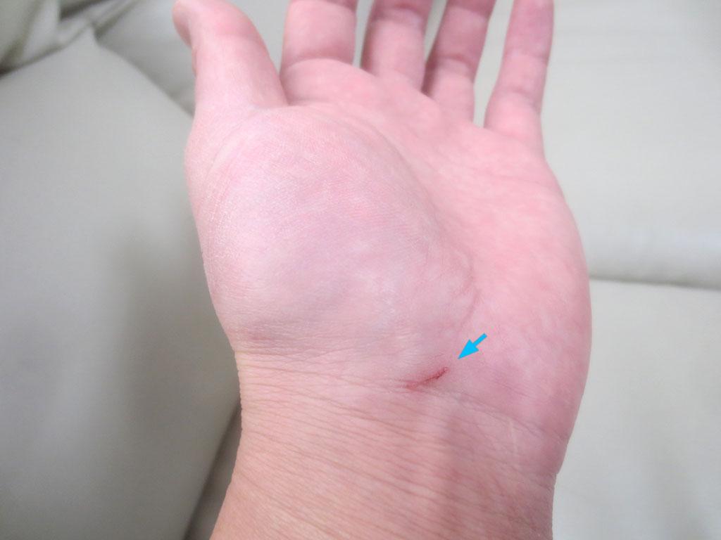 私の手の傷。