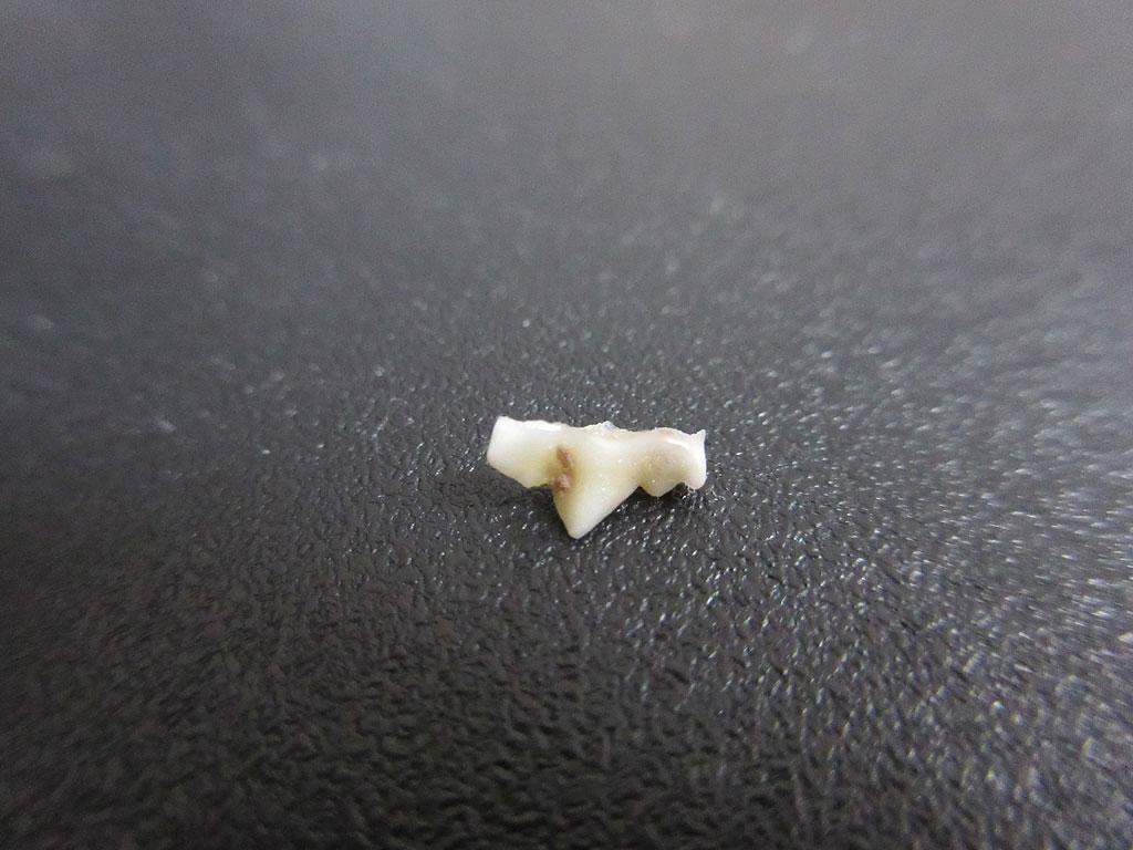 アビのすけの奥歯の写真。