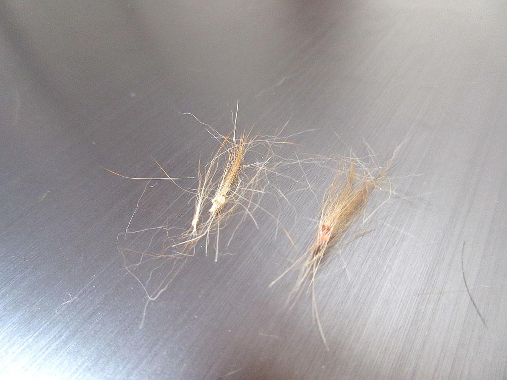まるで真菌の様な抜け毛。
