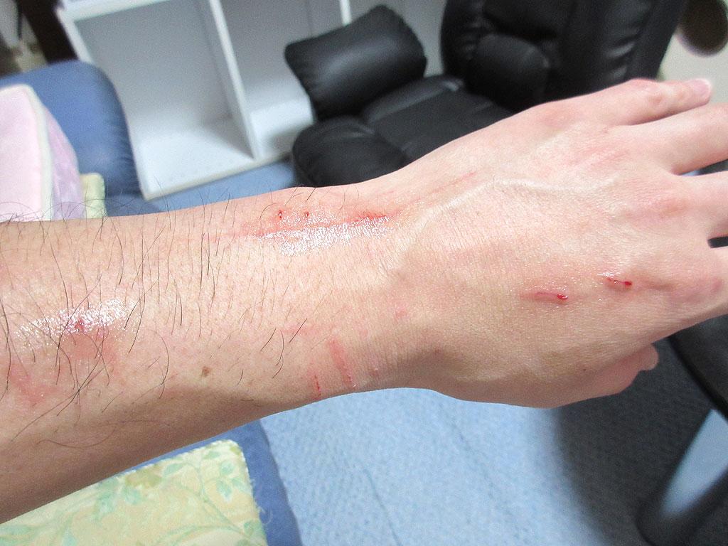 傷口の治療後の手。