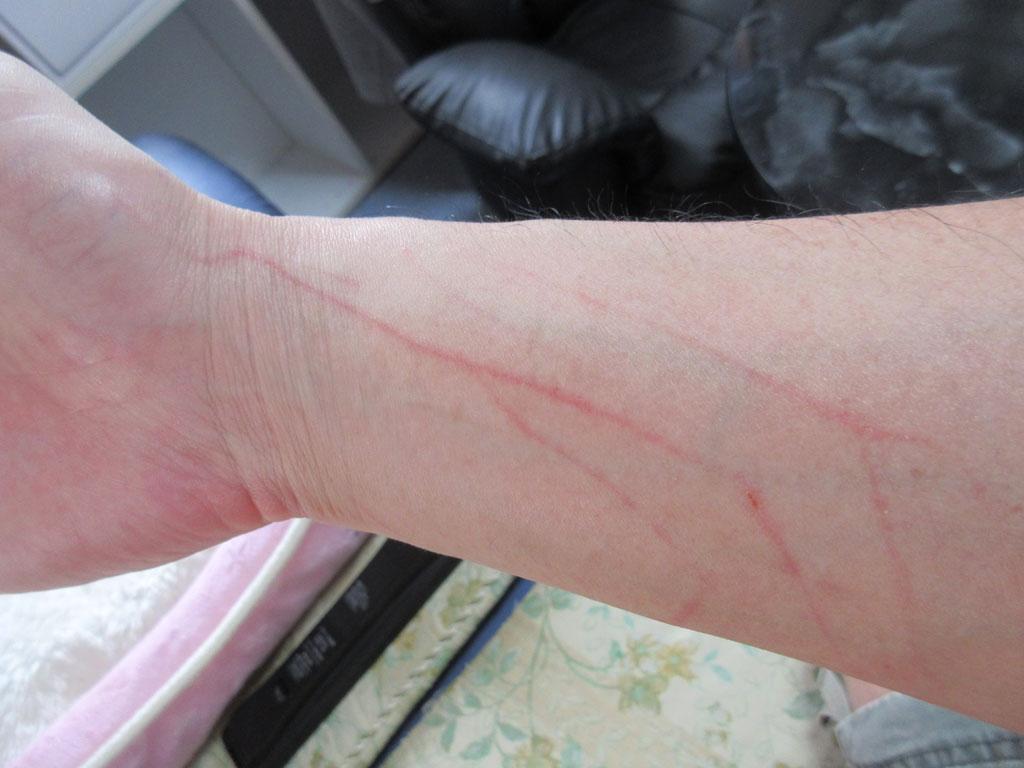 引っ掻かれた私の手。