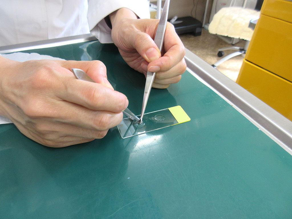 スライドガラスで皮膚検査。