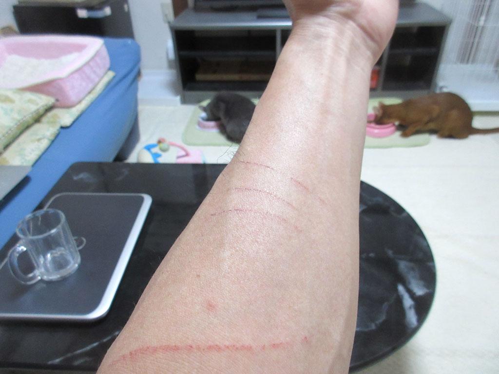 残りそうな引っ掻き傷。