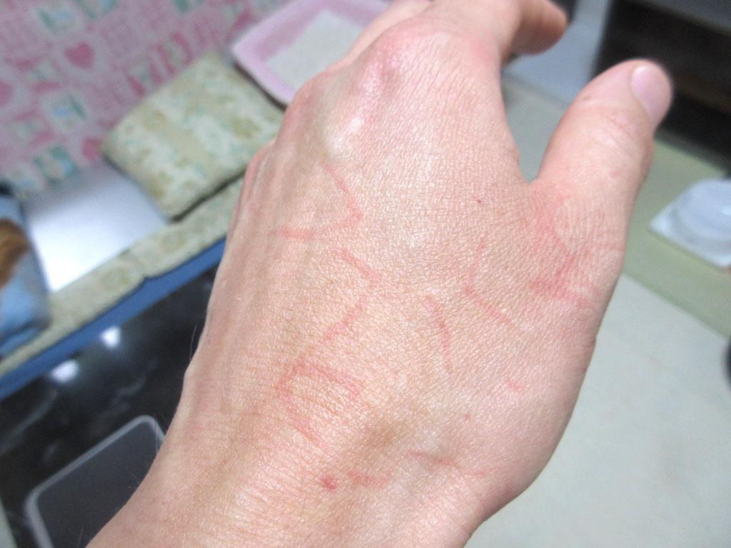アビのすけと格闘後の私の手。
